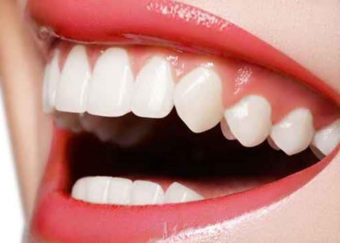 Alimentos para deixar dentes e gengiva fortes e saudáveis